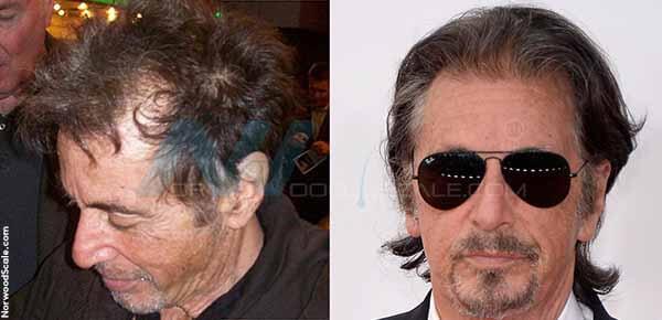 Worst hair transplant celebrity homes