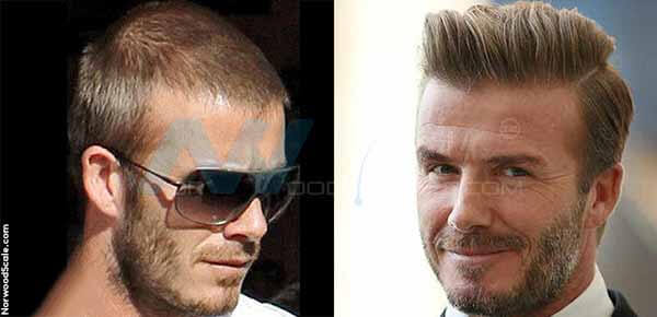 45 Best And Worst Celebrity Hair Transplant Procedures